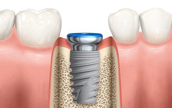 5 avantaje ale unui implant dentar